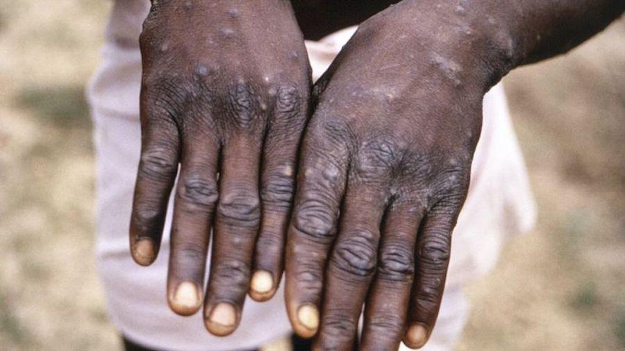 monkey smailpox