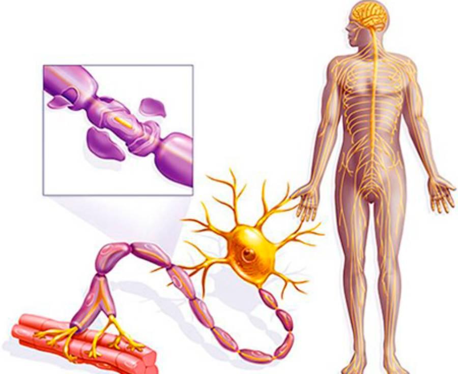 sindrom gijena barre
